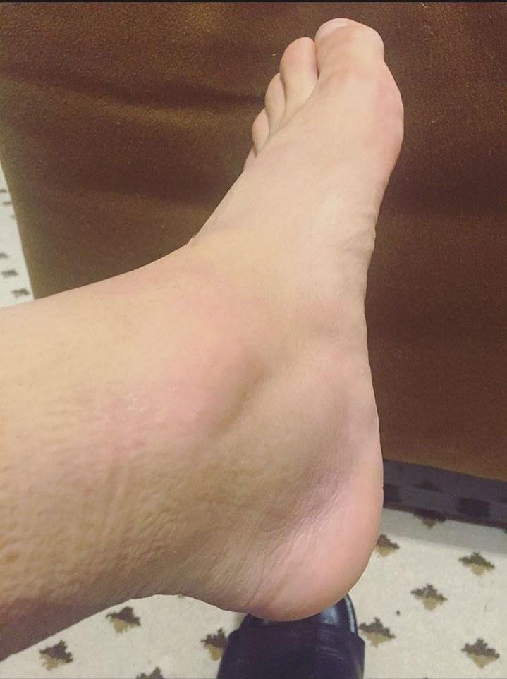 Alexis Sánchez posta foto de tornozelo inchado após partida