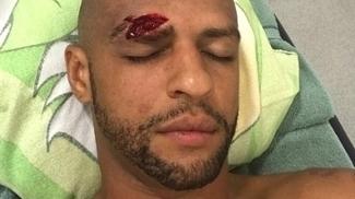 Felipe Melo posta foto e mostra 'estrago' de choque com Mina no clássico na Arena do rival