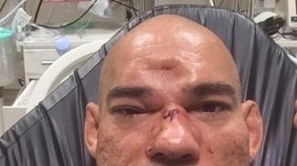 Cyborg sofreu um afundamento no crânio