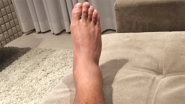 Elano postou foto do tornozelo direito inchado em sua conta no Twitter