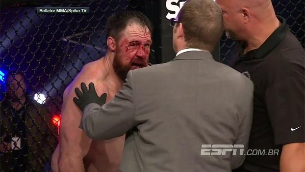Que surra! McGeary deixa rosto de McDermott desfigurado e vence por nocaute técnico no 2º round