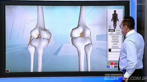 Doutor Renê Abdalla explica detalhadamente a lesão do meia Moisés