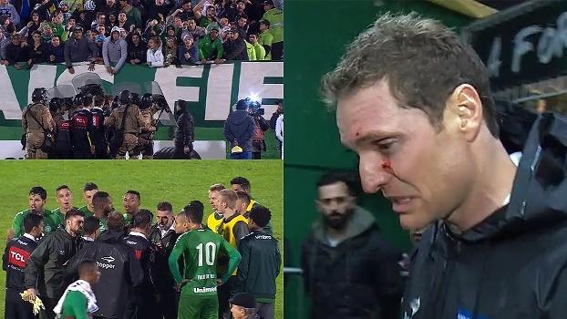 Árbitro sangrando, polícia em campo e clima tenso entre jogadores; veja a confusão após Chape x Cruzeiro