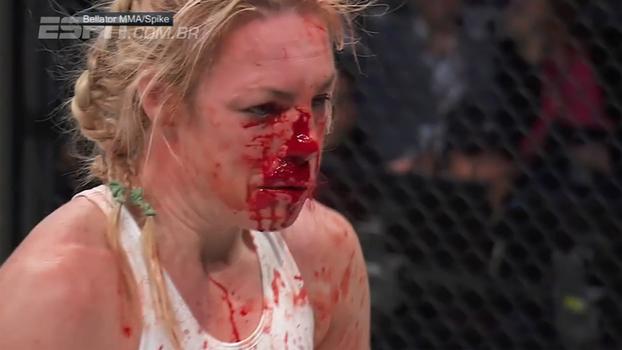 Veja chutaço na cabeça que deixou lutadora do Bellator coberta de sangue